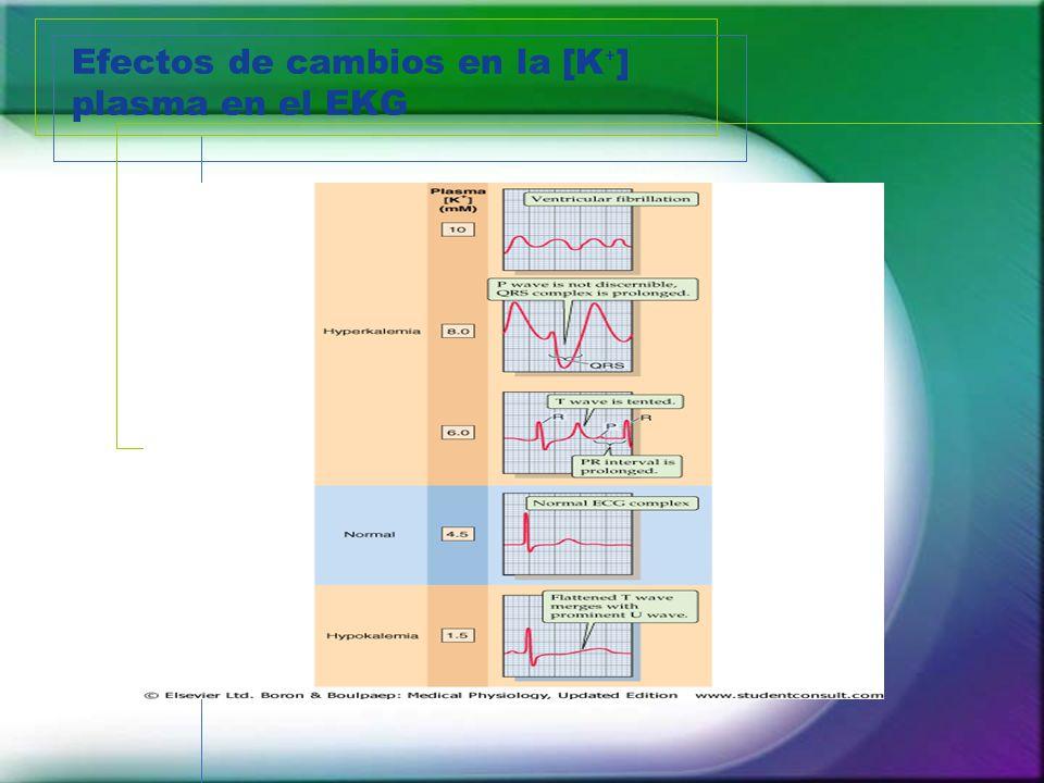 Efectos de cambios en la [K⁺] plasma en el EKG